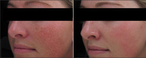 IPLPhotorejuvenation treatments