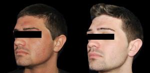 Forehead Lift (Browlift)